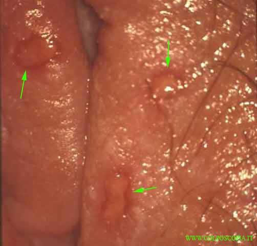 Izzy pantyhose tube