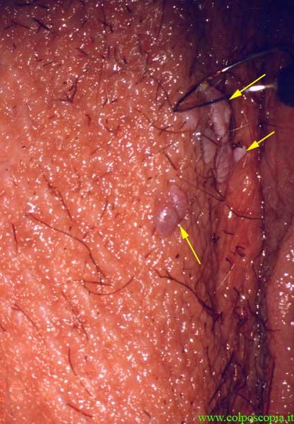 Rimedi di gente di trattamento di eczema